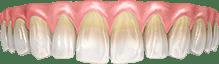 Проблема цвета зубов. «тетрациклиновые зубы»