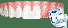 Реакция зубов на острое, холодное и горячее
