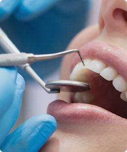 Отбеливание зубов: история 5
