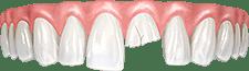 Травмы, трещины и сколы зубов