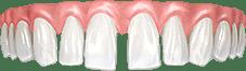 Щели между зубов, скученность, проблемы прикуса