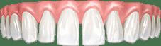 Щели между зубов (тремы и диастемы)