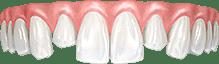 Разная длина зубов и выдвижение из зубного ряда