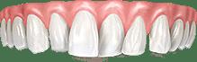 Перекрестный зубной ряд и другие патологии прикуса