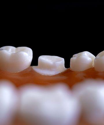 Отбеливание зубов: история 3