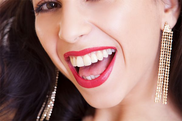 Отбеливание зубов: история 6