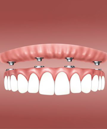 Отбеливание зубов: история 9